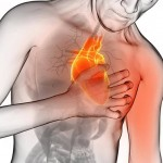 Pain in the chest – a heart attack or a simple angina?