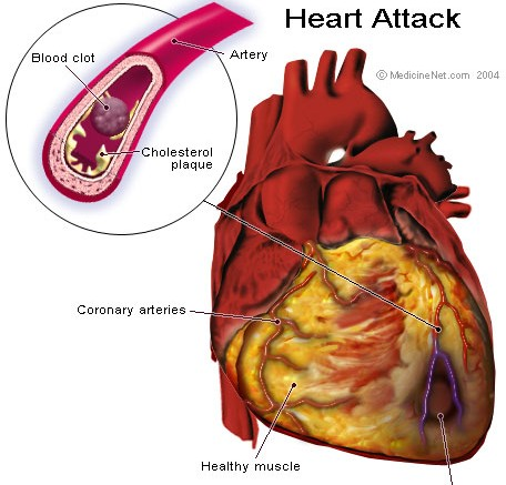 A Blood Clot in the Heart - Photo by: ravindra gandhi- Source: Flickr Creative Commons