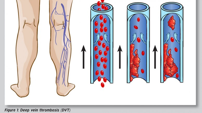Deep Vein Thrombosis - Photo by: sportEX dynamics 2012;31(January):18-22 - Source: Flickr Creative Commons