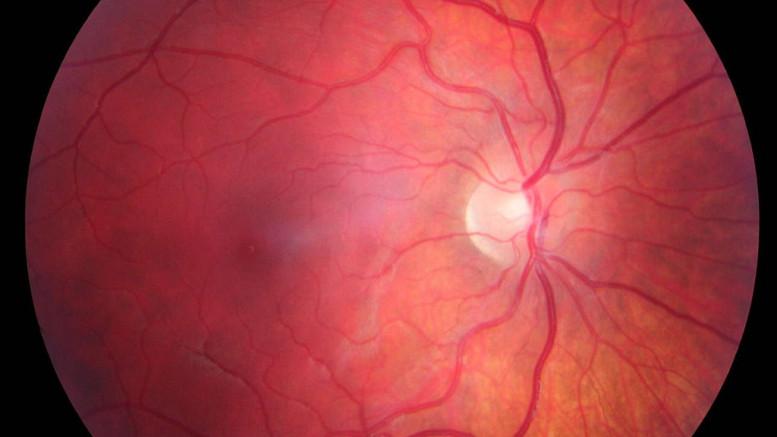 A retina close-up. Photo credit: Jan Kaláb