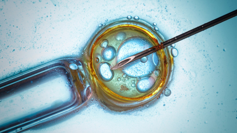 Infertility treatment and IVF